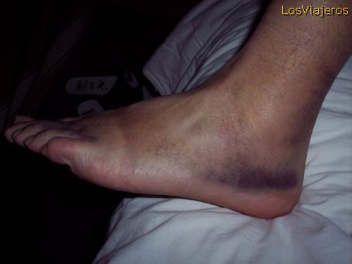 Hemorragia en el pie. Langmusi - China